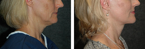 best lower facelift photos