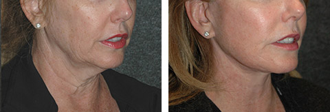 best lower facelift surgeon