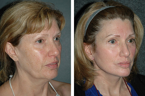 lower facelift before and after patient pics