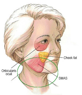 lower facelift diagram