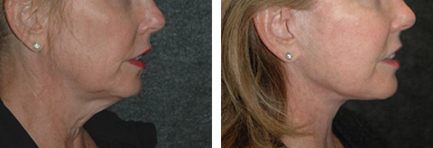 lower facelift ny photos