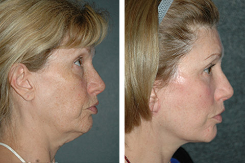 lower facelift patient before and after pics