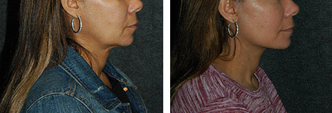 lower facelift pics
