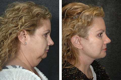 lower facelift surgery photo