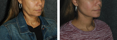 lower facelift surgery photos