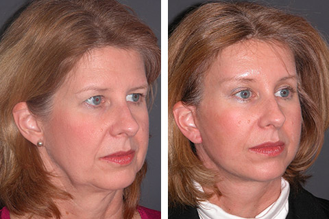 new york lower facelift patient photos