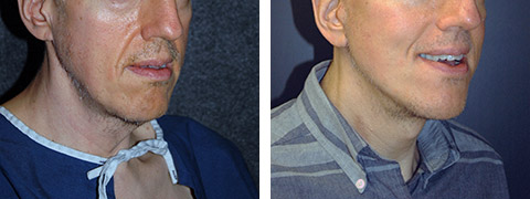 best facelift for men