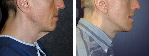 best male face lift surgeon