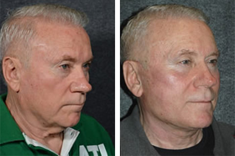 facelift for men before and after