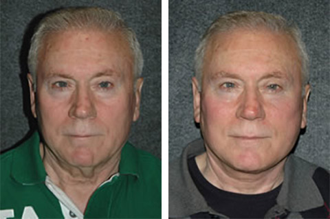 facelift for men photos