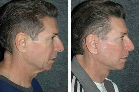facelift surgery for men