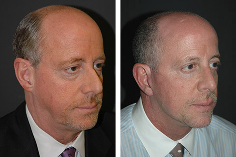 male facelift patient pictures