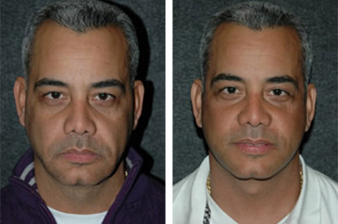 male necklift patient before after