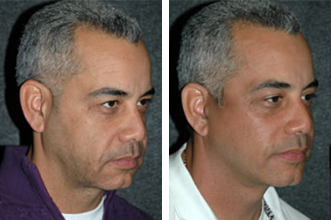 male necklift patient photos