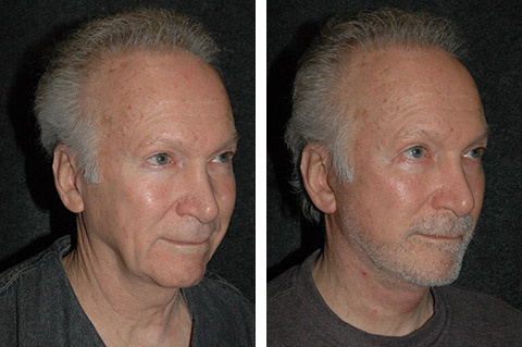 new york male face lift photos