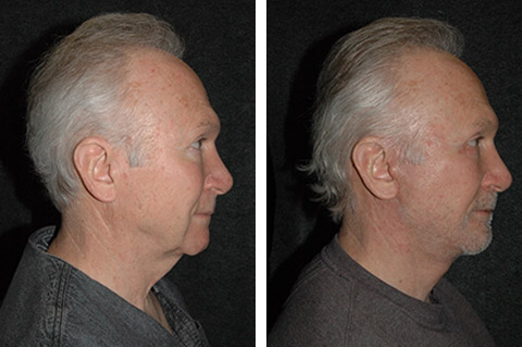 new york male face lift surgery