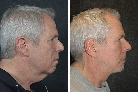 best male necklift results