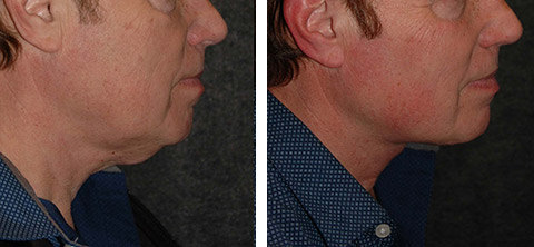 male necklift before and after photo