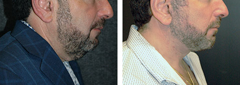 male necklift patient