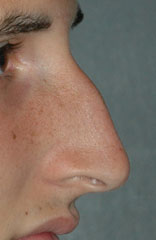 Men and Plastic Surgery Before Nose | NYC