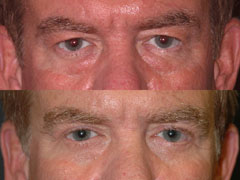 Men and Plastic Surgery Eyelid Lift | NYC