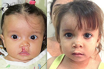 Cleft Lip Young Girl Before and After