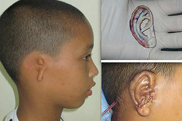 Microtia Patient