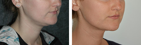 long island neck liposuction results