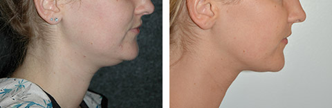 long island neck liposuction