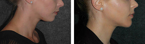 neck liposuction new york city