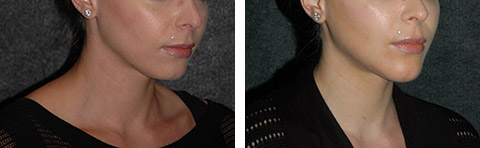 neck liposuction new york