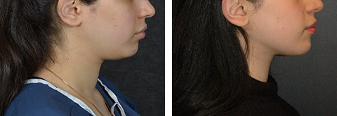 neck liposuction patient photos