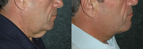 Male Neck Lift Patient Photos