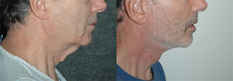 Male Neck Rejuvenation Before and After