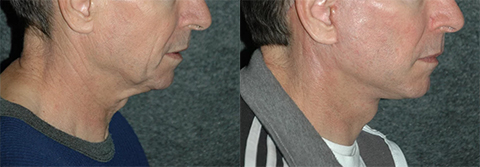 Male Neck Rejuvenation