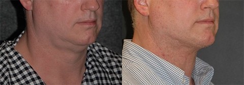 Neck Lift for Men Photos