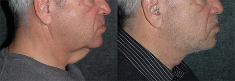 Neck Lift for Men