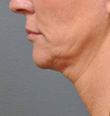 NON-SURGICAL FACE LIFT - Patient 1 - Before