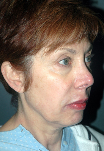 NON-SURGICAL FACE LIFT - Patient 3 - Before
