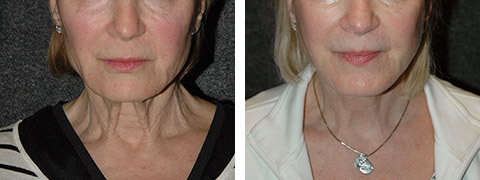 new york platysmaplasty before after photos