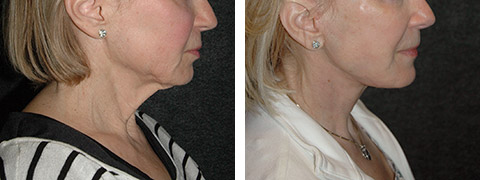 new york platysmaplasty before after pictures