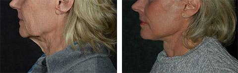 platysmaplasty before after photos