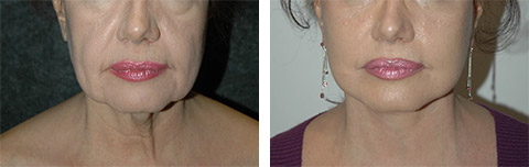 platysmaplasty neck lift photos