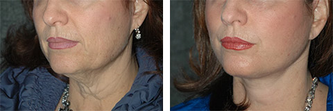 platysmaplasty patient before and after photos