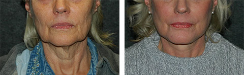 platysmaplasty patient results