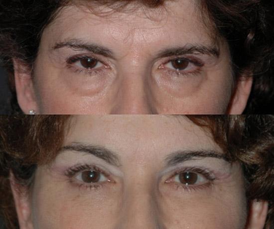 Eye Lift Surgery Cost