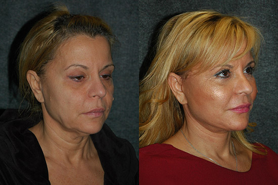Mini Face Lift Cost
