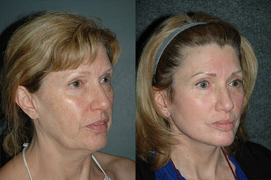 Facelift Photos Before and After