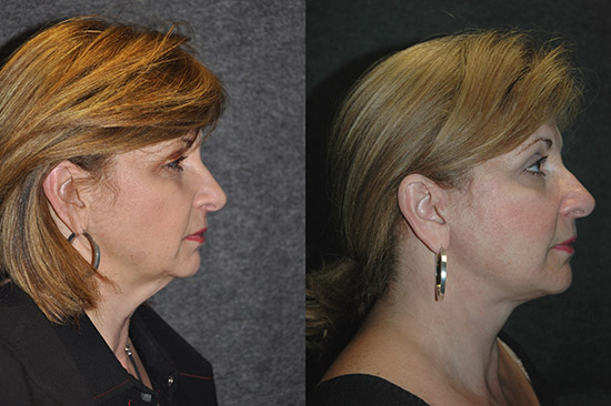 Micro Neck Lift Before and After