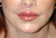 Revision Lip Augmentation - Patient 1 - After